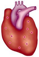 Q92resup_heart